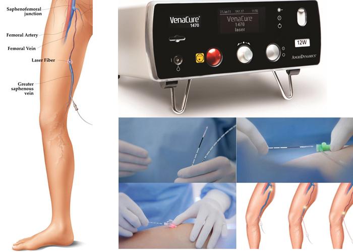 Laser varicose veins treatment