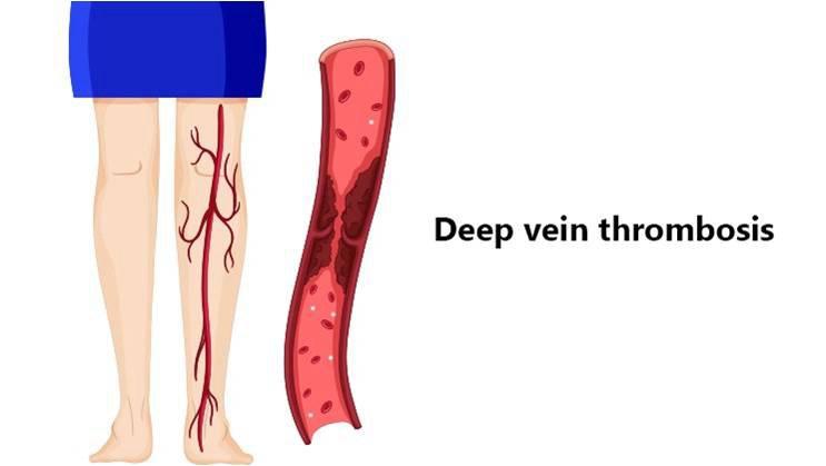 deep-vein-thrombosis dvt